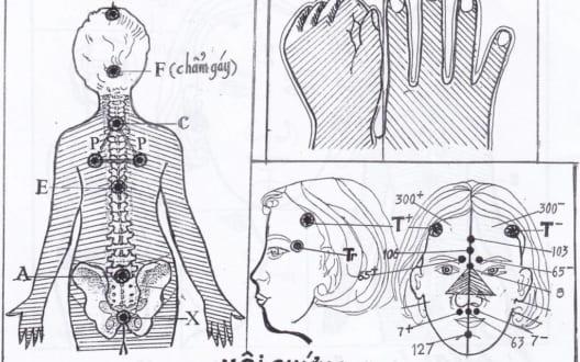Phác đồ khắc phục hội chứng tiền mãn kinh