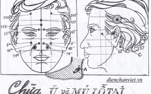 3 bước chữa ù, mủ lỗ tai, tai điếc