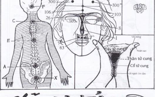 4 bước Diện Chẩn chữa u xơ tử cung