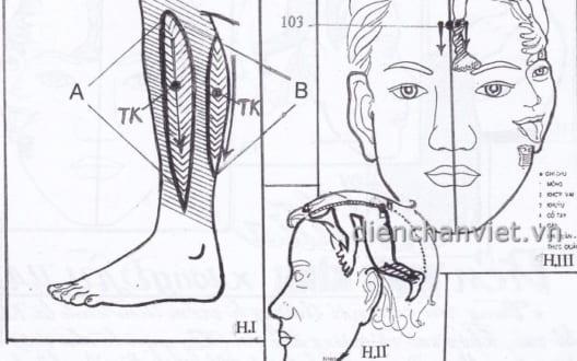 5 bước Diện Chẩn viêm thần kinh bắp chân